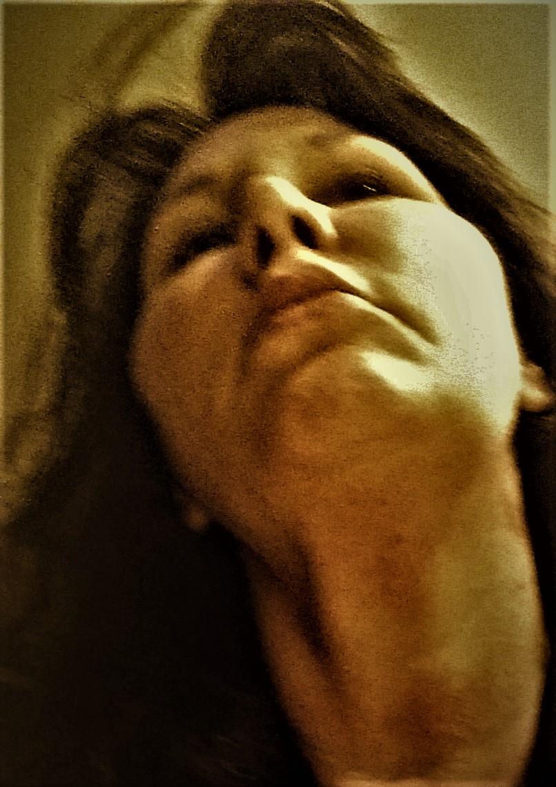 Strangulation Bruising